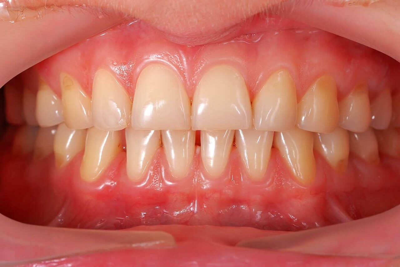 Treatment of gums in Kiev - Dental Clinic PORCELAIN 2