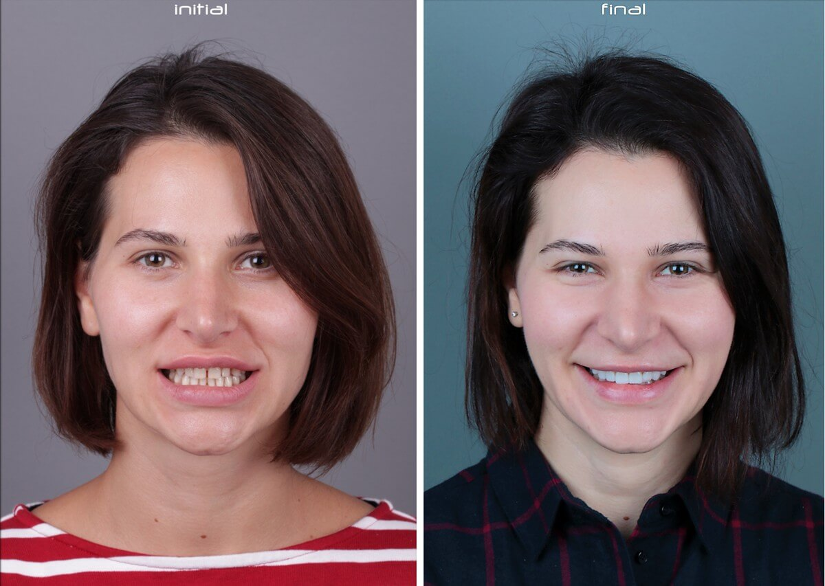 Natalia Patient Story: Ceramic Veneers and Smile Design  1