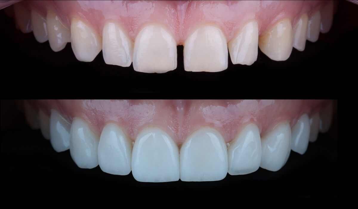 Natalia Patient Story: Ceramic Veneers and Smile Design  2