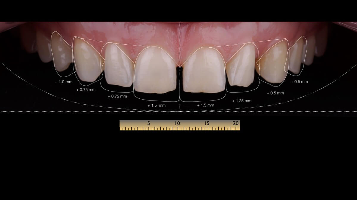 Natalia Patient Story: Ceramic Veneers and Smile Design  3