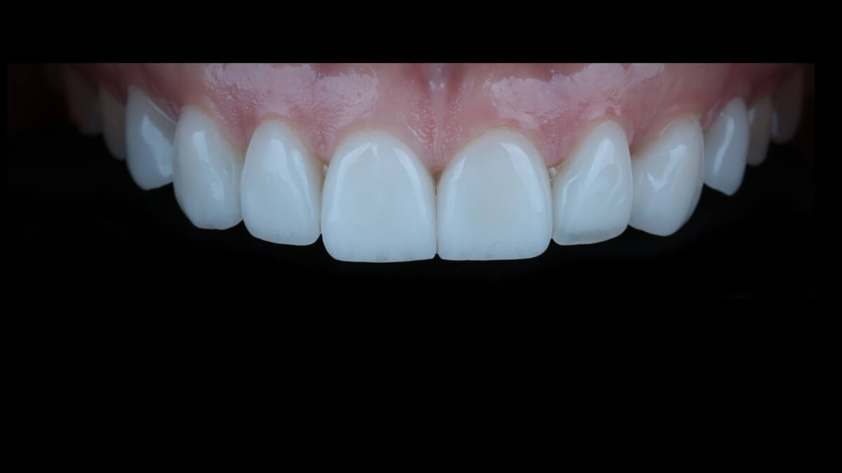 Natalia Patient Story: Ceramic Veneers and Smile Design  4