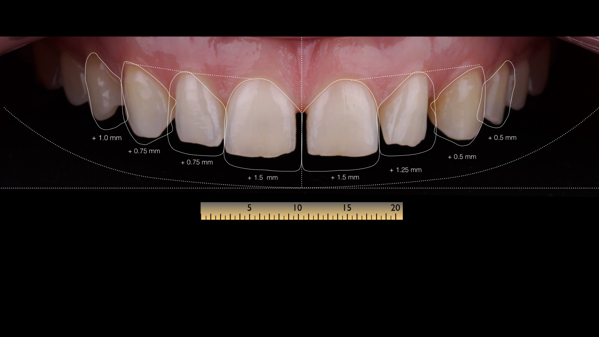 The story of one smile - Natalya - Veneers + DSD 3