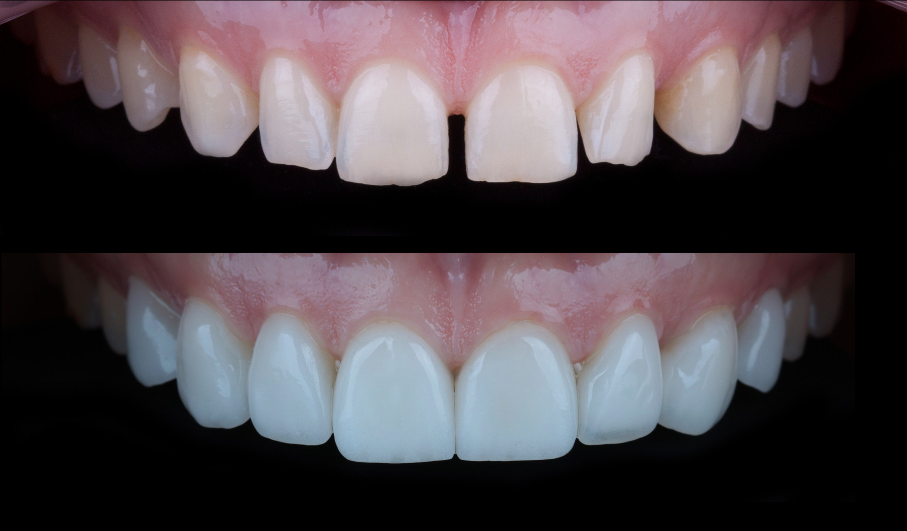 The story of one smile - Natalya - Veneers + DSD 2