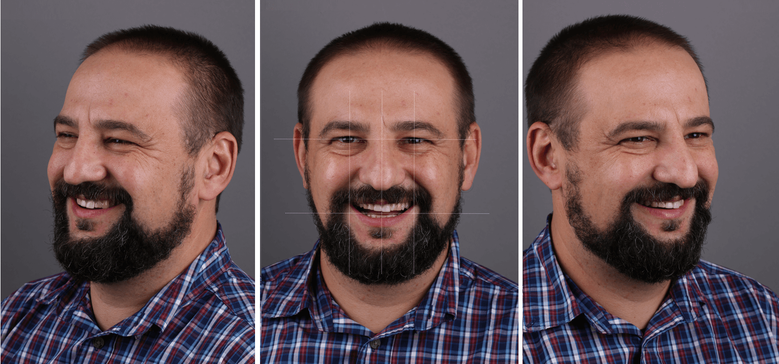 Vladimir - ceramic veneers + crowns 1