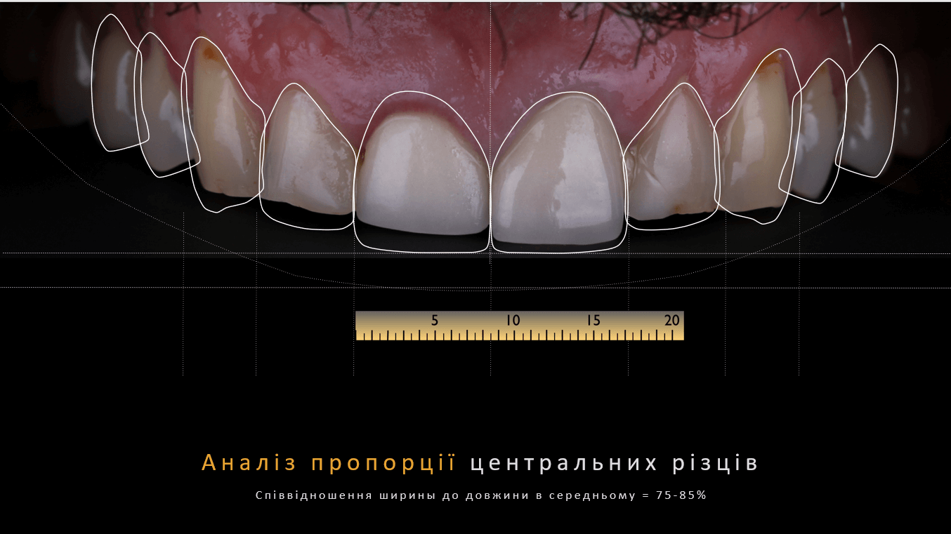 Vladimir - ceramic veneers + crowns 3