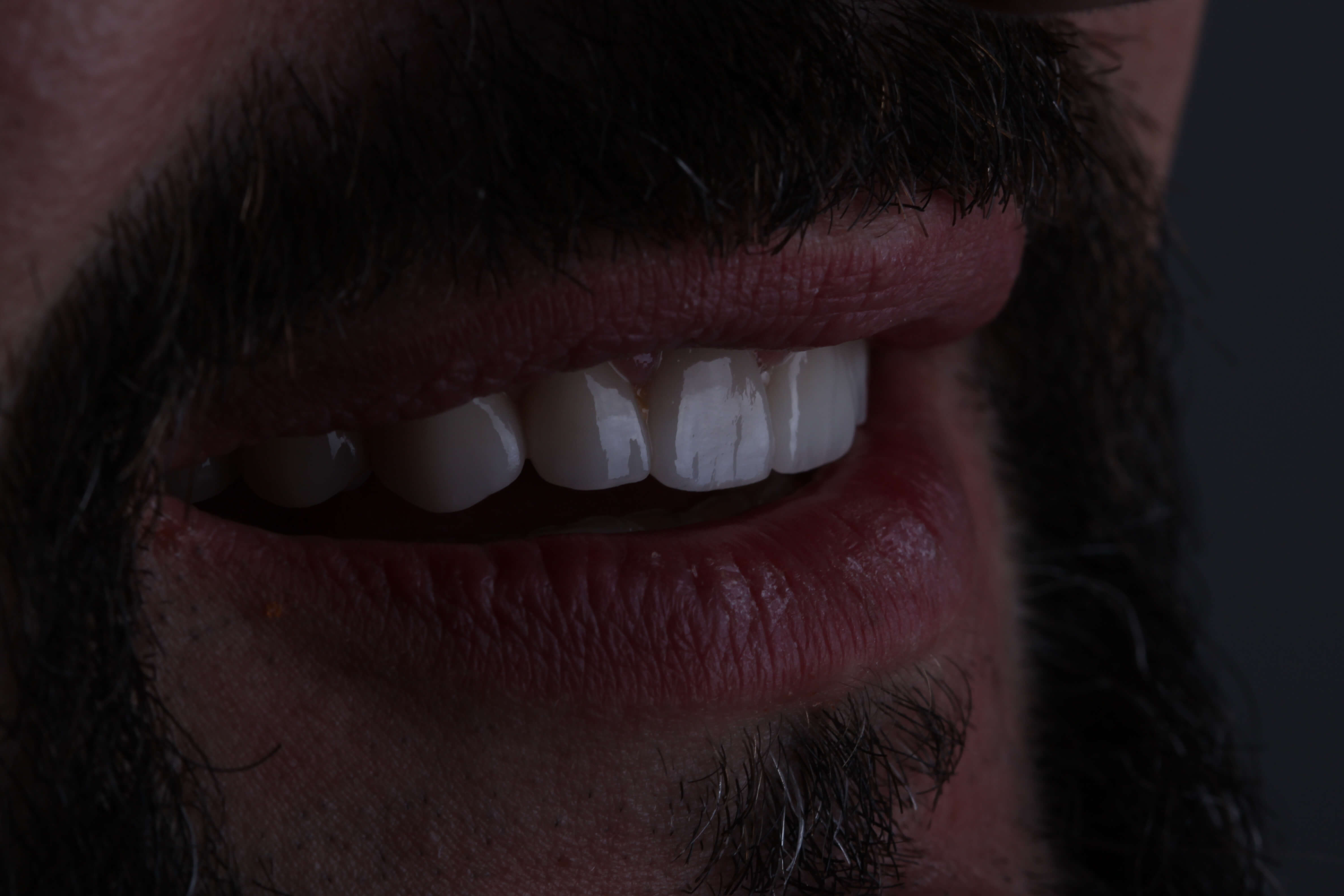 Vladimir - ceramic veneers + crowns 4
